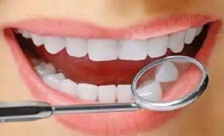 成都安莎贝拉牙齿贴面与烤瓷牙的区别